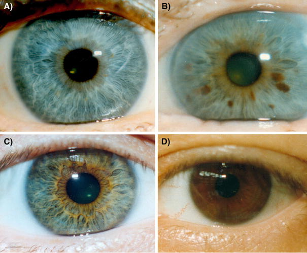Different eye color phenotypes  a Blue  without brown areas   b Blue with  brown spots  with brown  scored as  unknown  in the linkage and association. Blue Eyed People Have One Common Ancestor   Science 2 0