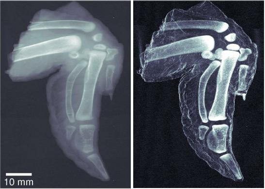 Better X-Rays: Dark-Field Imaging Using Standard Equipment