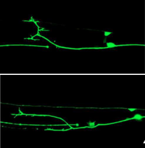 Genes Discovered That Repair Neurons