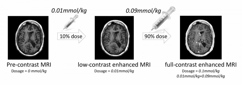 How To Reduce Gadolinium Heavy Metal Contrast Agent In MRI Using AI