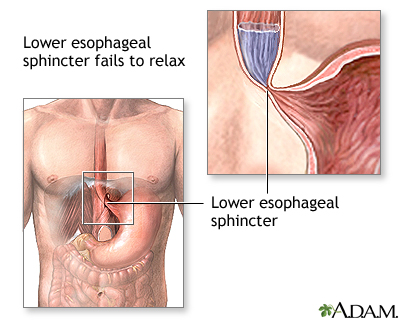 Achalasia Esophagus Disease Is Autoimmune