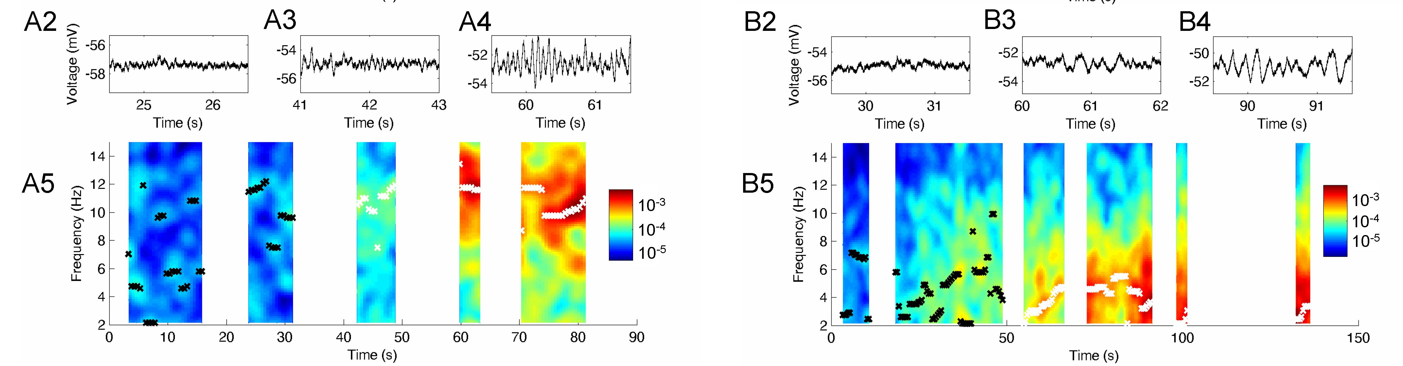 Electrophysiological recordings of a cell entohinal cortex