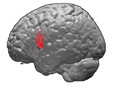 The left side of a human brain with the red area showing IFG.
