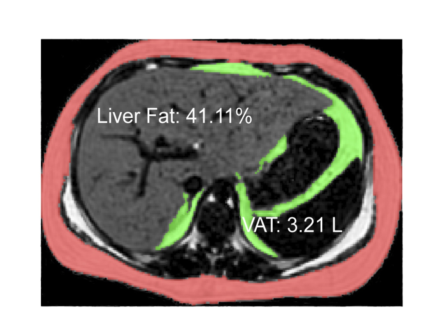 MRI Image of Fatty Liver in a Teenager