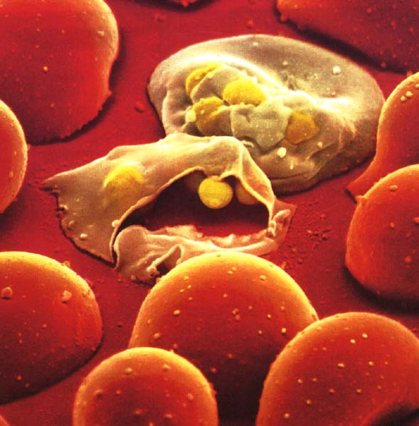 The Race To Cure Malaria