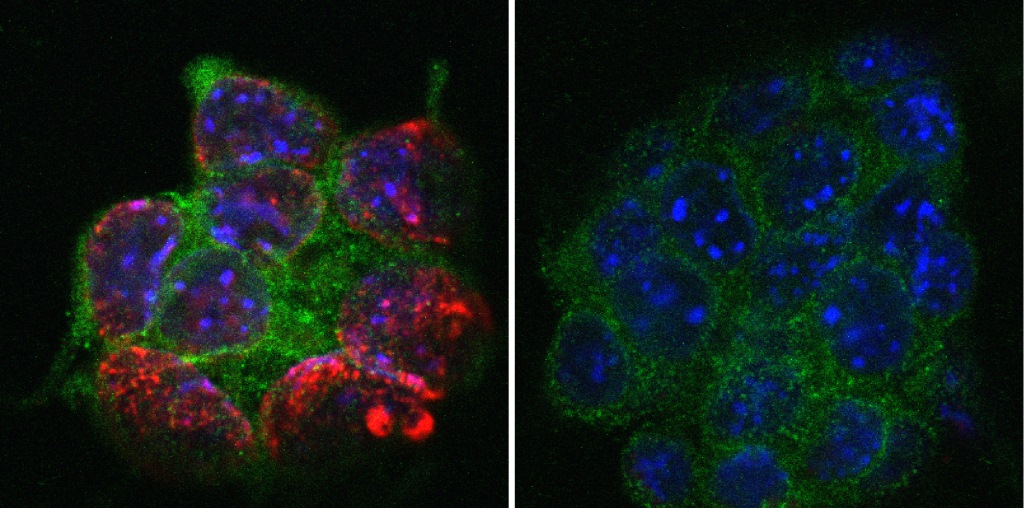 Mouse embryonic stem cells (blue, green) lose DNA methylation (red) in the absence of UHRF1