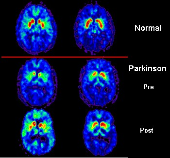 PET_scan_Parkinson Disease