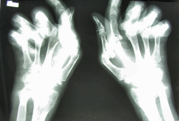Rheumatoid Arthritis - Can New Treatment Spell The Beginning Of A Cure?