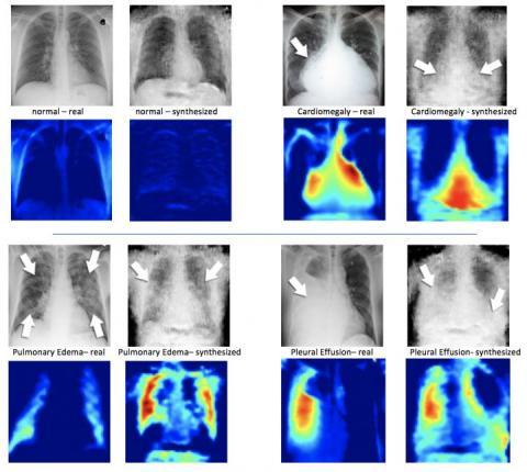 AI May Improve Medical Diagnostics - But The Limit Is Algorithms