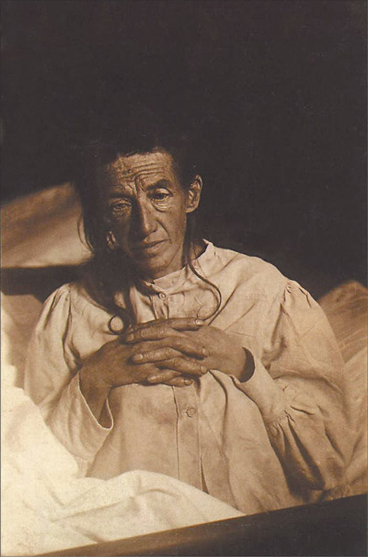 Alois Alzheimer's patient Auguste Deter in 1902. Hers was the first described case of what became known as Alzheimer's disease. Wikimedia