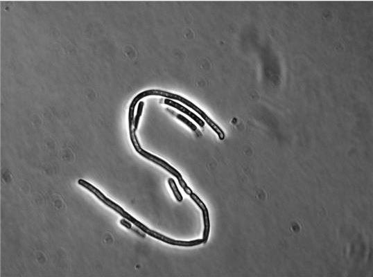 Bacillus Cereus Is Able To Resist Antibiotic Therapies
