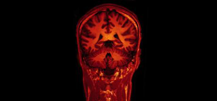 Will Brain Images And Thoughts Be Protected Under The 4th And 5th Amendments?