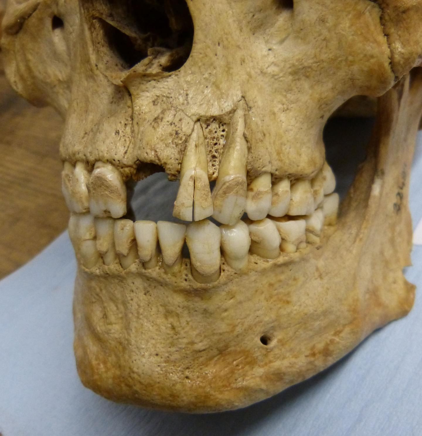 Learning About Ancient Diets From Modern British Teeth
