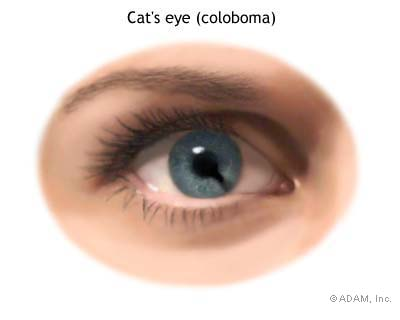 "Coloboma with a more defined ""keyhole"" shape"