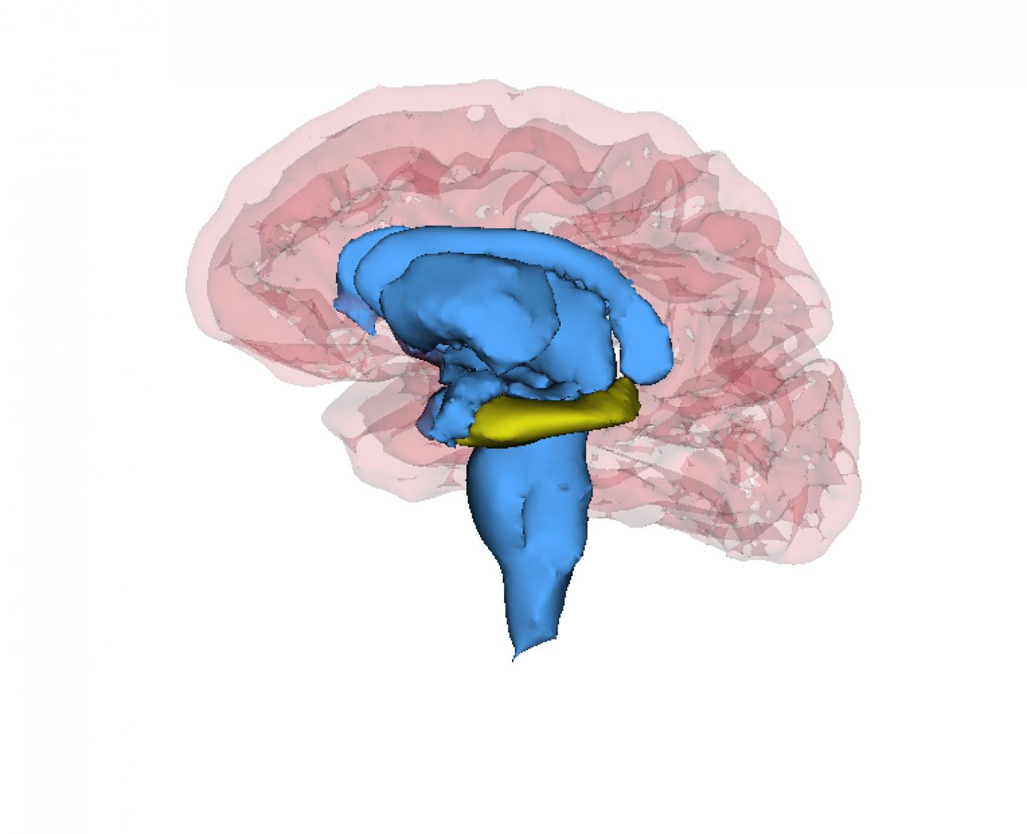 Patients With Recurrent Depression Have Smaller Hippocampi