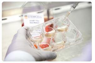 At This Cedars-Sinai Laboratory, Stem Cells Get Thanksgiving Too