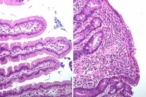 Celiac Disease Diagnosis Gets Simplified
