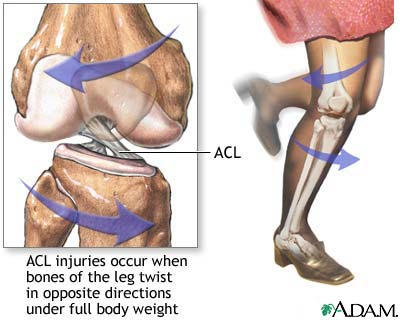 ACL Surgery Is Better Sooner Rather Than Later