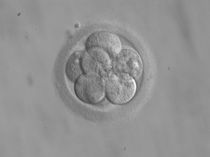 What Are The Ethics Of Research Using Human Fetal Tissue?