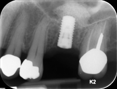 xray of a dental implant