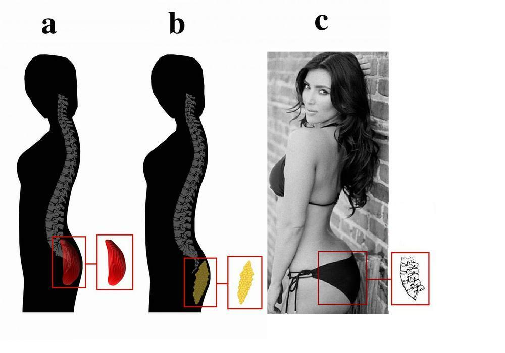Kardashian Lumbar Curvature Index - An Evolutionary Hypothesis