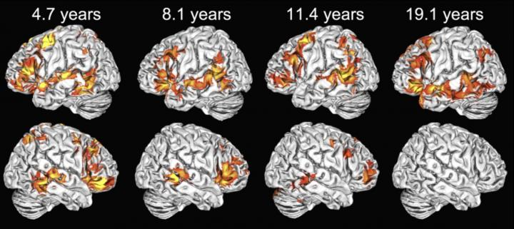 Children Use Both Brain Hemispheres To Understand Language, But Adults Don't