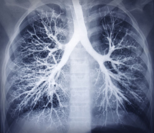 Fixing 'leaky' Blood Vessels To Combat Severe Respiratory Ailments