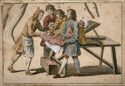 Lithotomy: A Painful Operation Inspired The 18th-Century Equivalent Of A Horror Movie Soundtrack