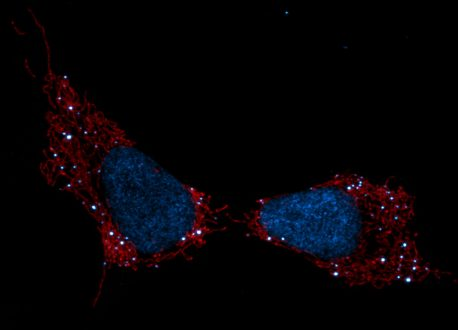 Mitochondria Send Out Cellular Distress Signals When DNA Are Damaged, Like In Chemotherapy