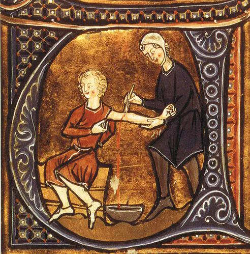 Astrological Bloodletting - Medieval Physicians Used Star Alignments For Phlebotomy Insight