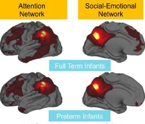 Premature Birth Linked To Weaker Brain Connections