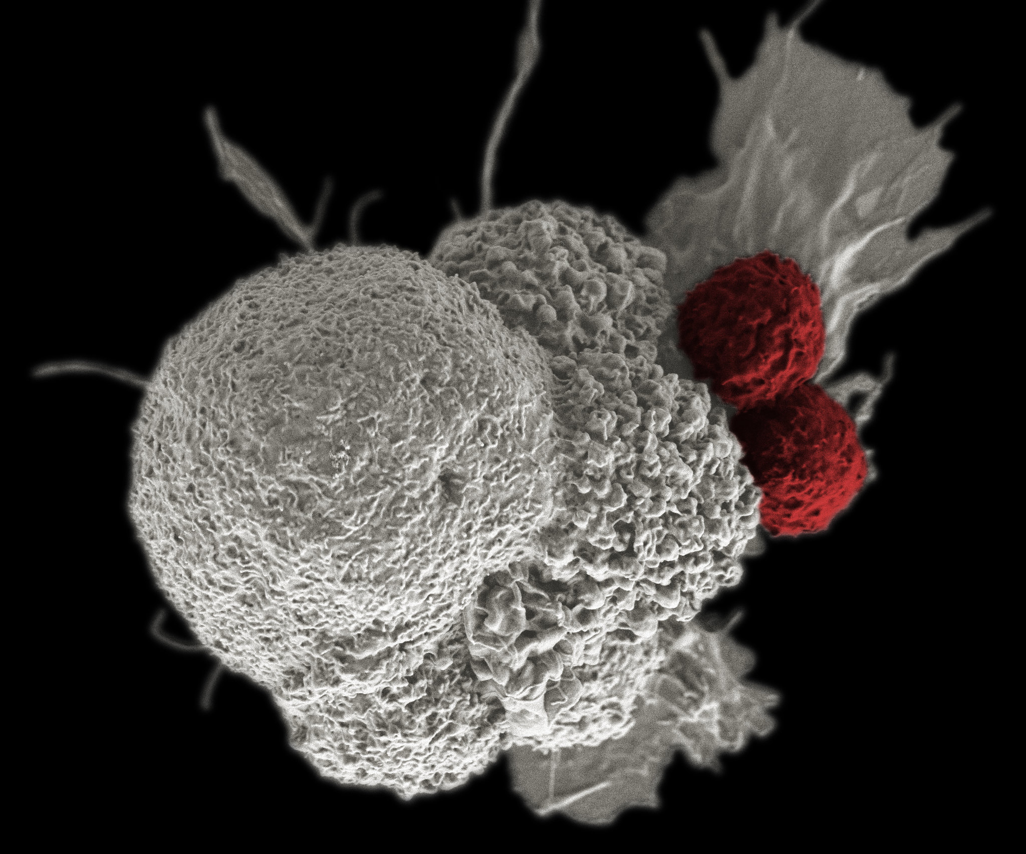 Genetically Edited White Blood Cells Are Already Helping Fight Cancer