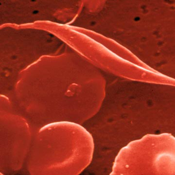 Gene Therapy Cures Sickle Cell In Mice
