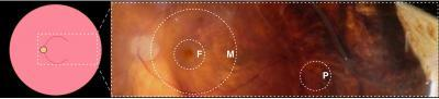 A Molecular Map For Eye Disease