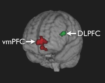 transparent brain shows regions of activation ventral medial prefrontal cortex vmPFC dorsolateral prefrontal cortex