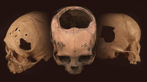 Trepanation: Sometimes You Needed A Hole In The Head - And Incans Were Really Good At It