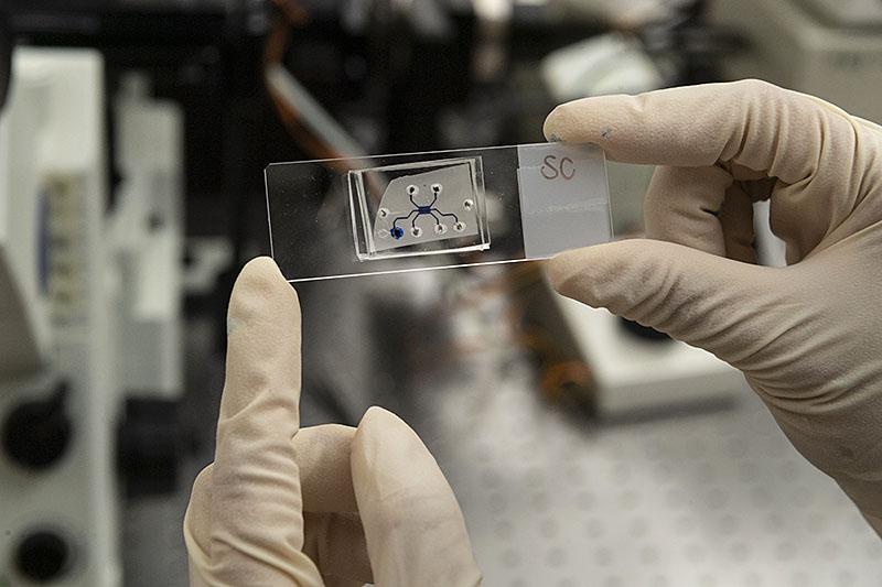 Acinus: Engineers Have Built A Pancreatic Cancer Time Machine