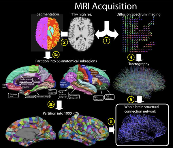 Using MRI And PET To Diagnose Mental Illness