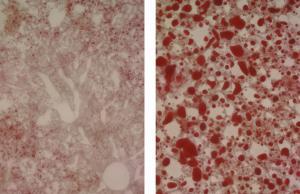 Researchers Discover Master Metabolism Regulator