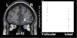 Brain's Reward Circuit Activity Ebbs And Flows With A Woman's Hormonal Cycle